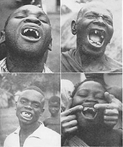 """Wherever the Africans have aidopted the foods of modern commerce, dental caries was active, thus destroying large numbers of the teeth and causing great suffering. The cases shown here are typical of workers on plantations which largely use imported foods."""